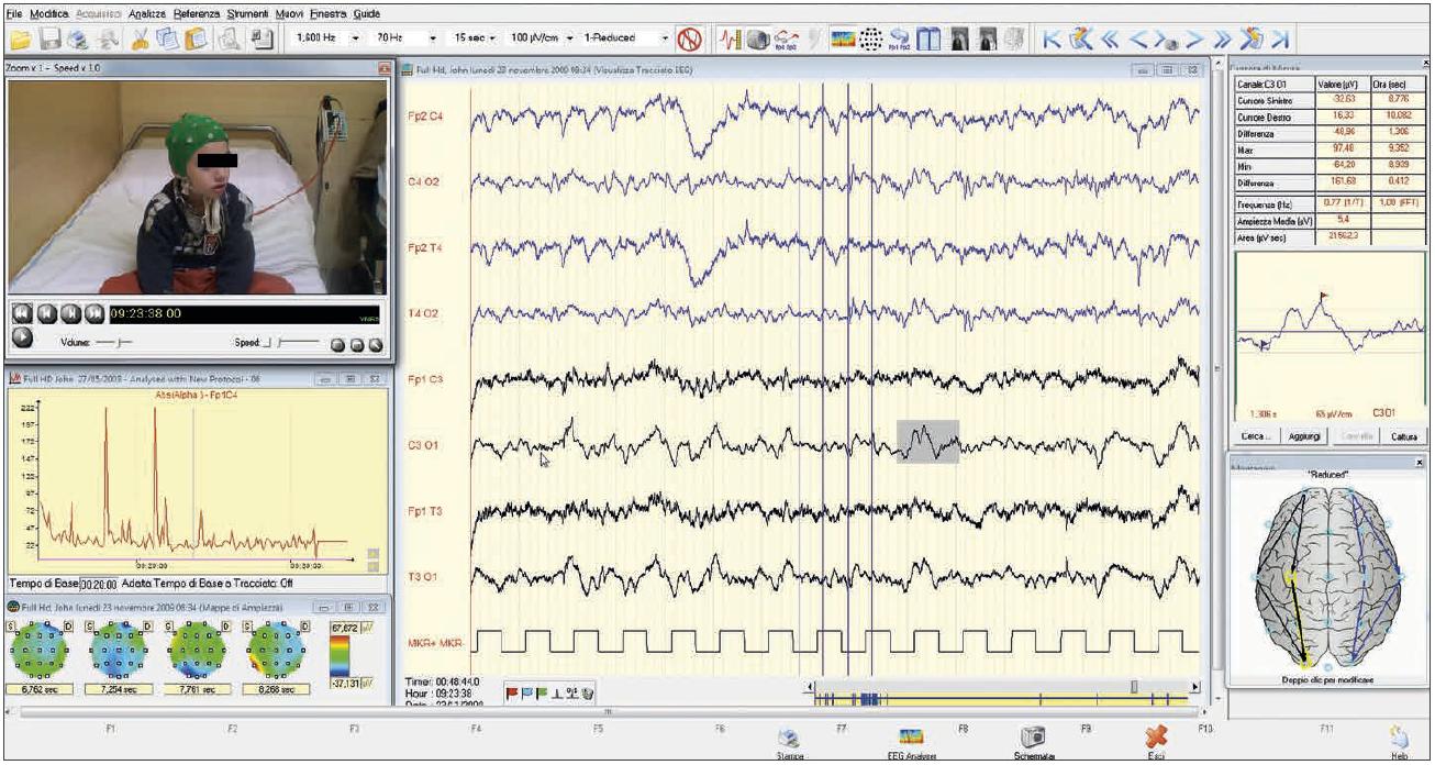 Brainquick Software